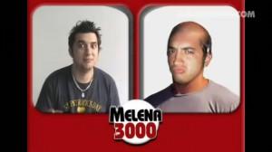 002_Melena-3000